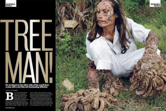 Treeman-1